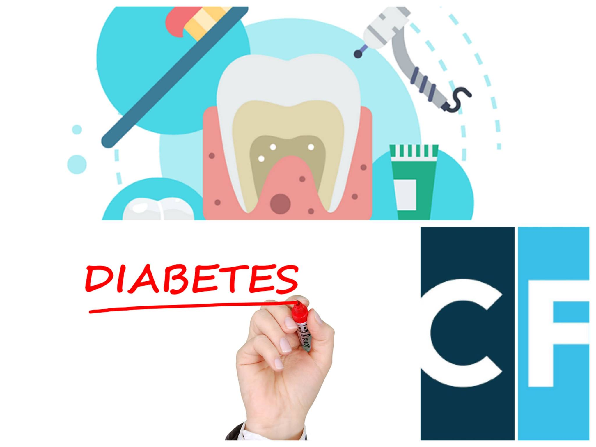 Diabete, controllo della glicemia e igiene orale