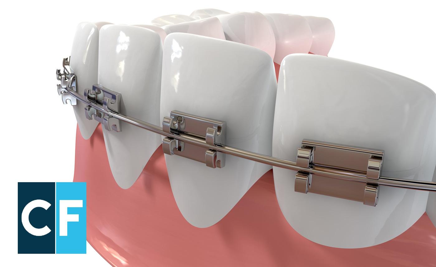 Clinica Favero - Apparecchio Ortodontico : tante funzioni in un piccolo amico