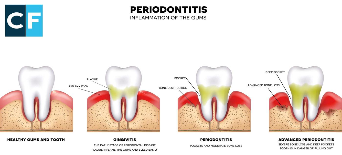 La Parodontite : come riconoscerla ed evitarla