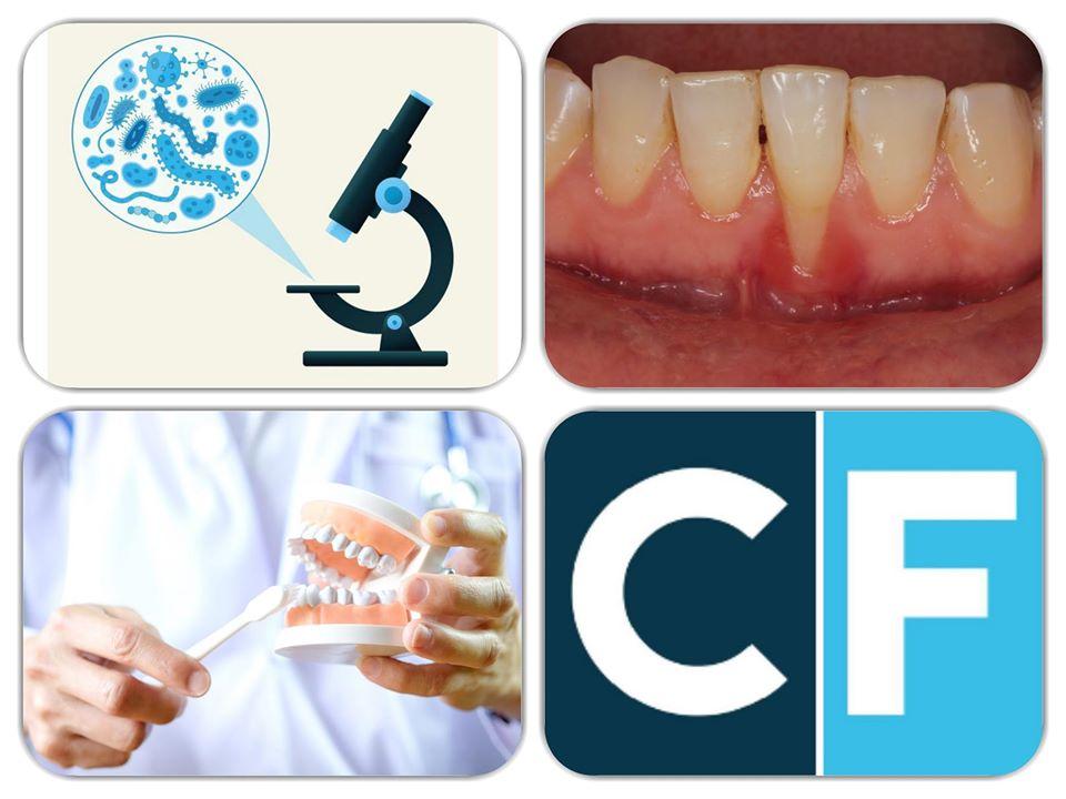 Clinica Favero - Piorrea e malattia parodontale