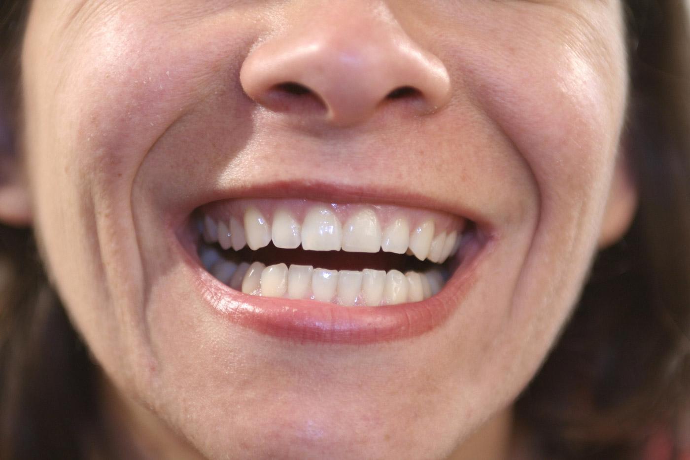 Denti sensibili? Ecco come alleviare i sintomi.