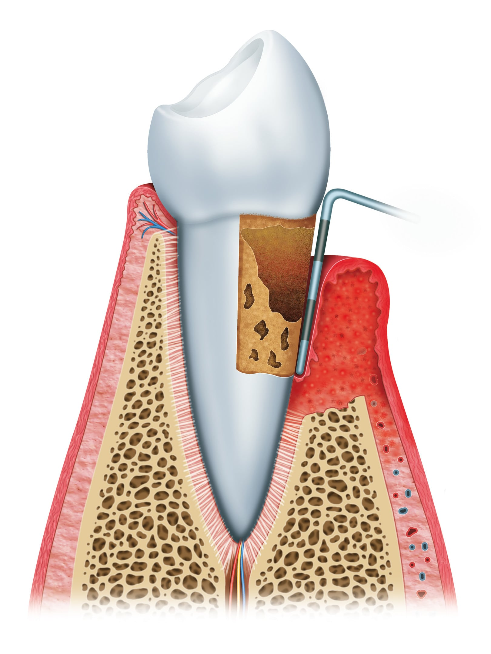 Igiene e prevenzione dentale