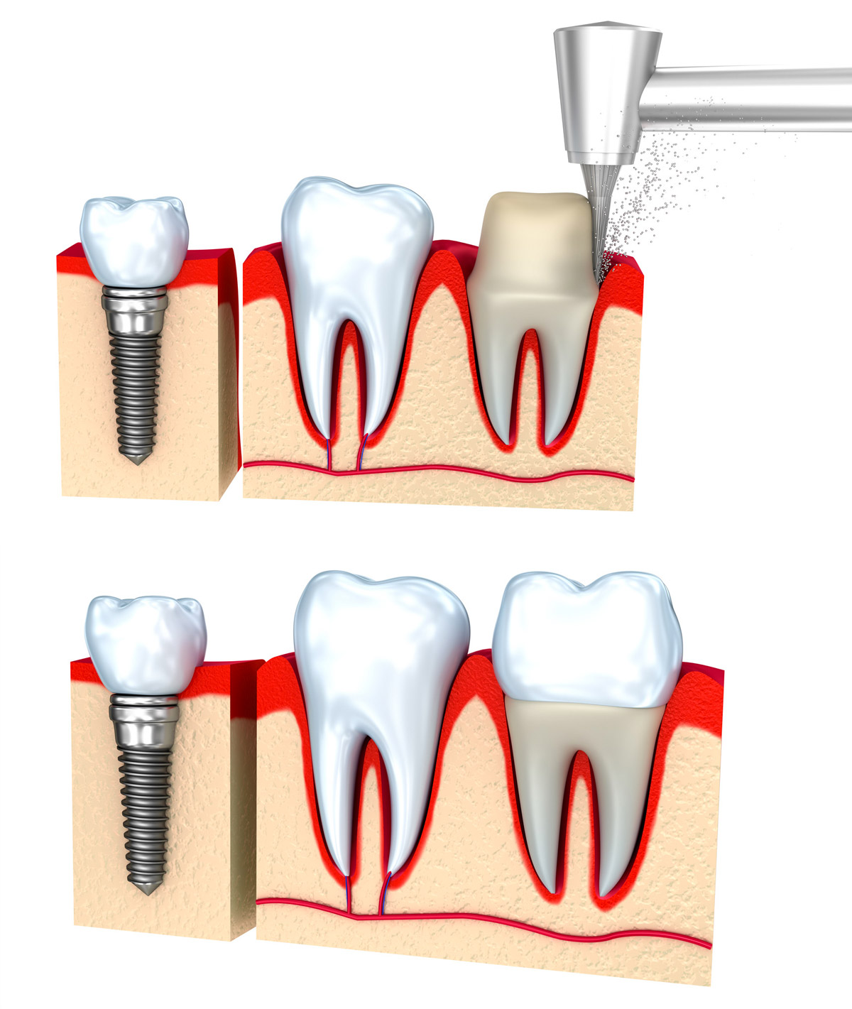 Protesi dentali estetiche